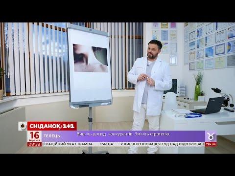 Как лечить гемангиому - Доктор Валихновский