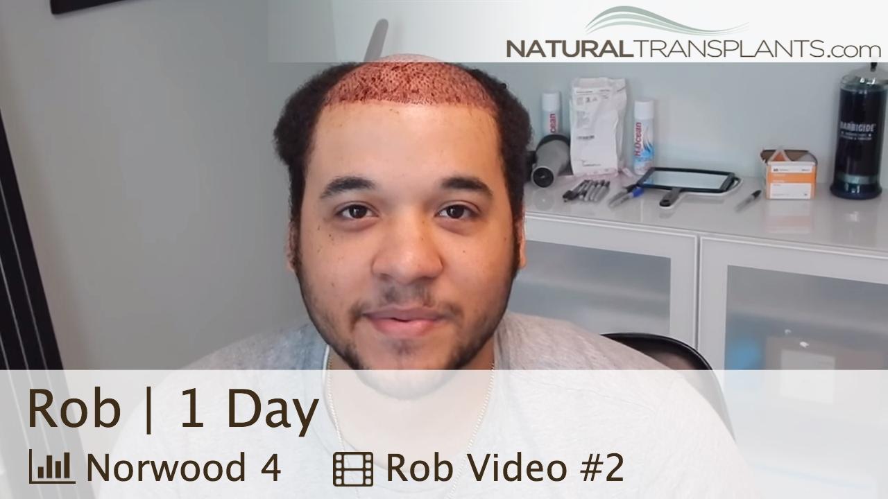hair loss Washington