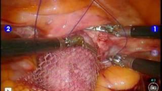 da Vinci sacrocolpopexy for vaginal prolapse -- davincisacrocolpopexy.com