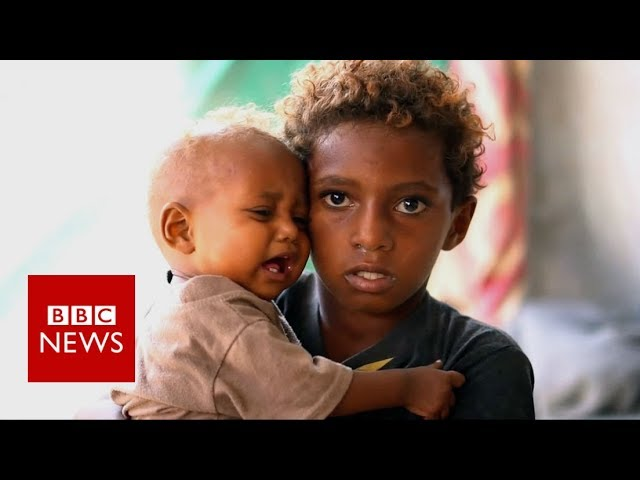 Yemen: Where children rummage through rubbish for food - BBC News