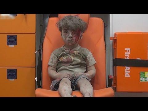 La imagen de un ni�o herido refleja el drama en la ciudad siria de Alepo