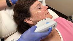 Ultherapy Treatment | Beleza MedSpa | Austin TX