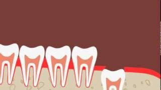 Удаление непрорезавшегося зуба мудрости(Удаление непрорезавшегося зуба мудрости путем хирургического вмешательства. Больше информации на нашем..., 2010-10-06T10:49:37.000Z)
