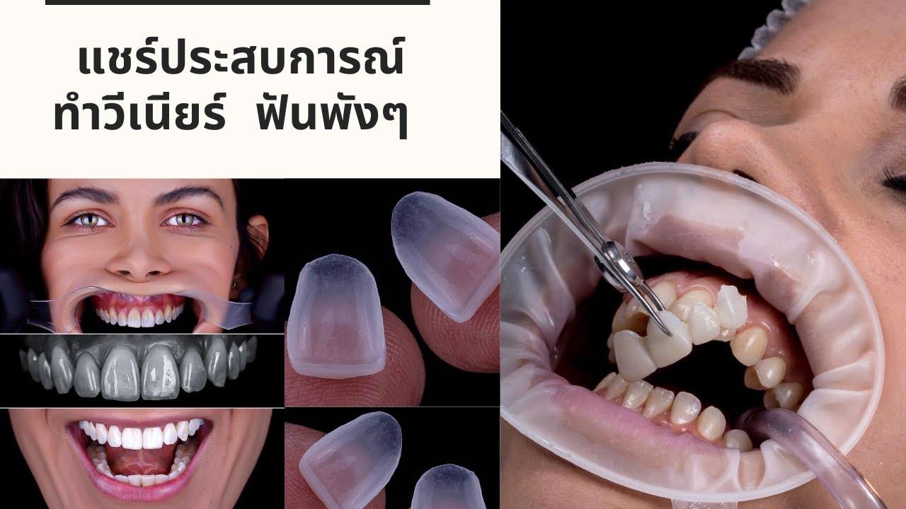 แชร์ประสบการณ์ทำ วีเนียร์ ฟันพังๆ VS ฟันใหม่ไฉไลกว่าเดิม (Dental Veneers)