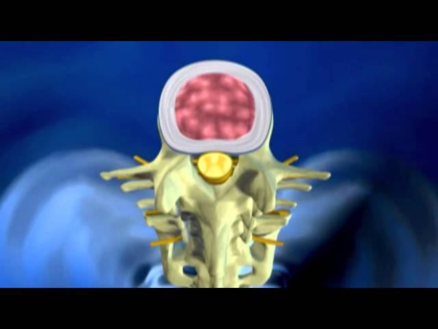 Herniated Disc Explanation