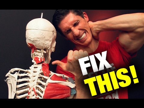 How to Fix a Stiff Neck in Seconds (THIS WORKS!)