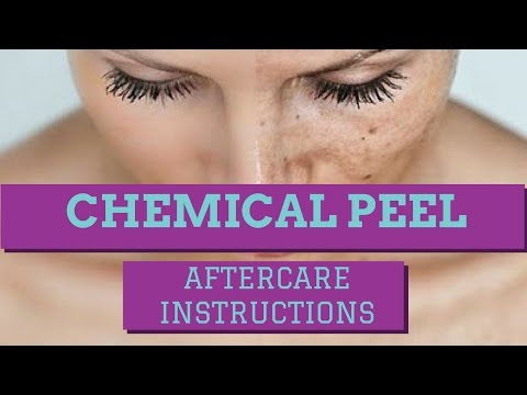 CHEMICAL PEEL AFTERCARE INSTRUCTIONS: HOW TO CARE FOR A CHEMICAL PEEL