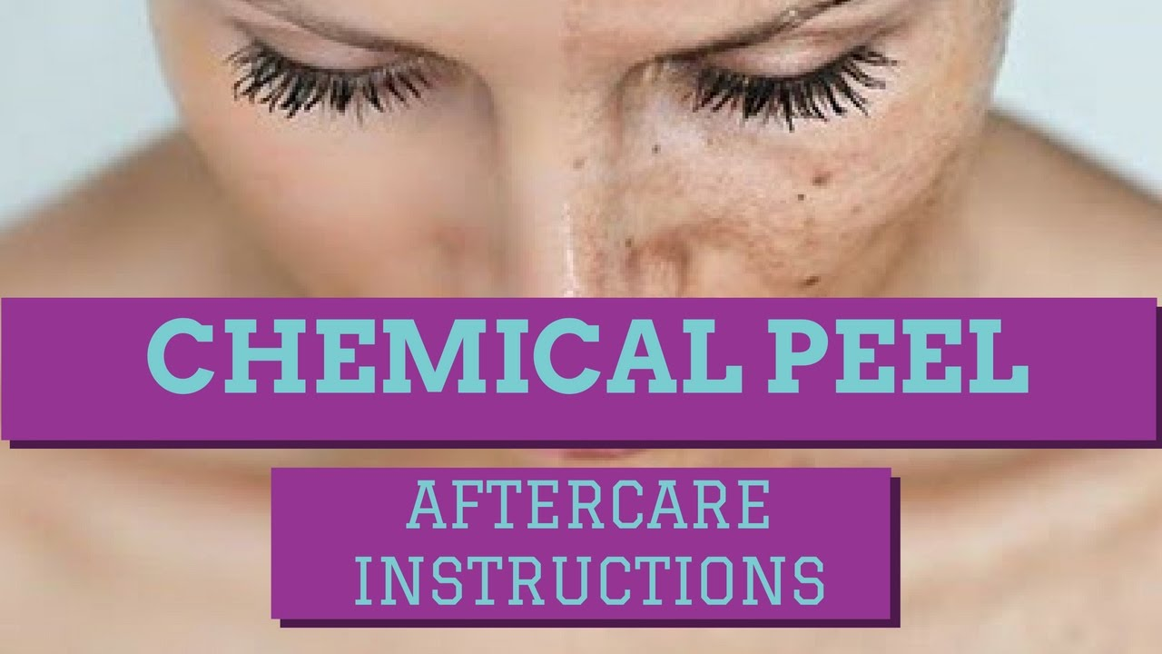 Chemical Peel Aftercare Instructions How To Care For A Chemical