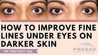 Improving Fine Lines Under the Eyes in Dark Skin - Limits of Heat Treatments and PRP