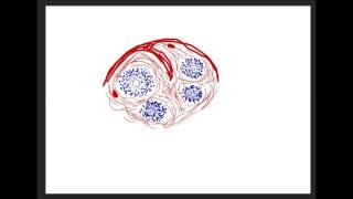 видео Амилоидоз внутренних органов. Патогенез. Клин.Диаг.Лечение