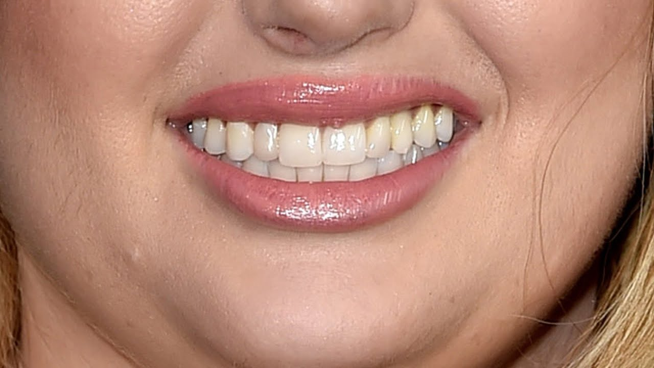 Can You Guess The Aussie Celeb From Their Smile? - YouTube