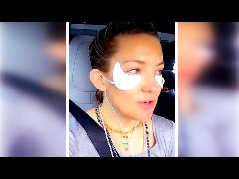 Dermatologist Says Kate Hudson's Electro Shock Eye Patches Can Burn Skin