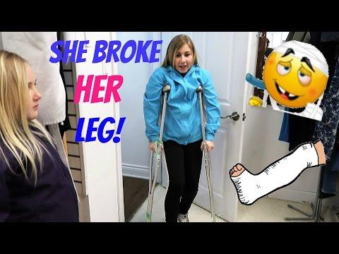 SHE BROKE HER LEG!! Day 086 (03/27/17)