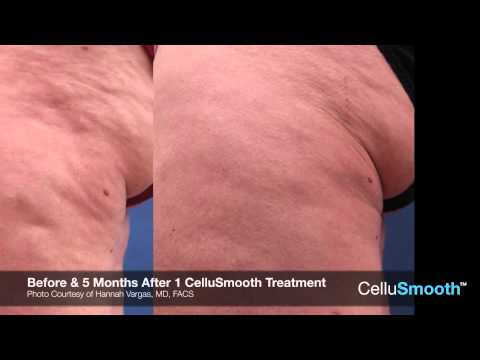 CelluSmooth Sciton | A Breakthrough in Body Contouring Laser Liposuction Cleveland, Ohio
