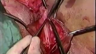Cirugia de cambio de sexo.
