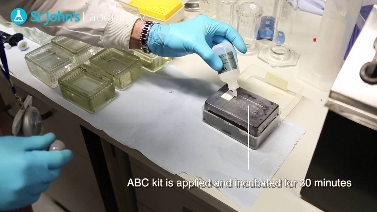 Download ImmunoHistoChemistry (IHC) - Video Protocol Series