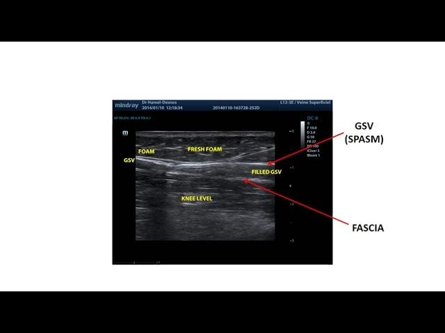 Second injection with foam sclerotherapy, how and where? First video