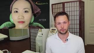 bb glow или тональный крем с эффектом на год. Обзор процедуры от врача косметолога.