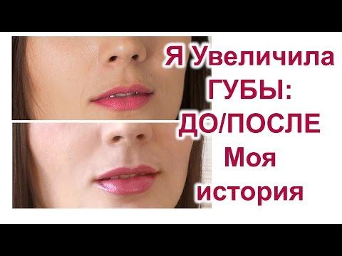 Увеличение губ. Мое До/После. Вся правда: ювидерм, цена, ощущения, результат