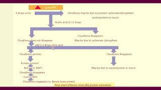 Multiple Myeloma Bence Jones protein  urine test and its clinical significance