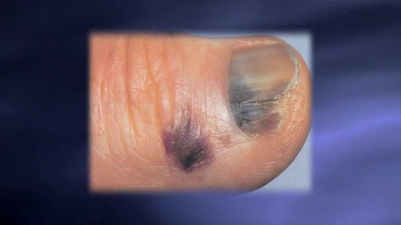 Skin Exams Catching Melanoma Earlier - YouTube