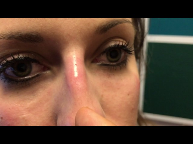 Cannula-Based Injectable Rhinoplasty Immediately After in Dallas, TX