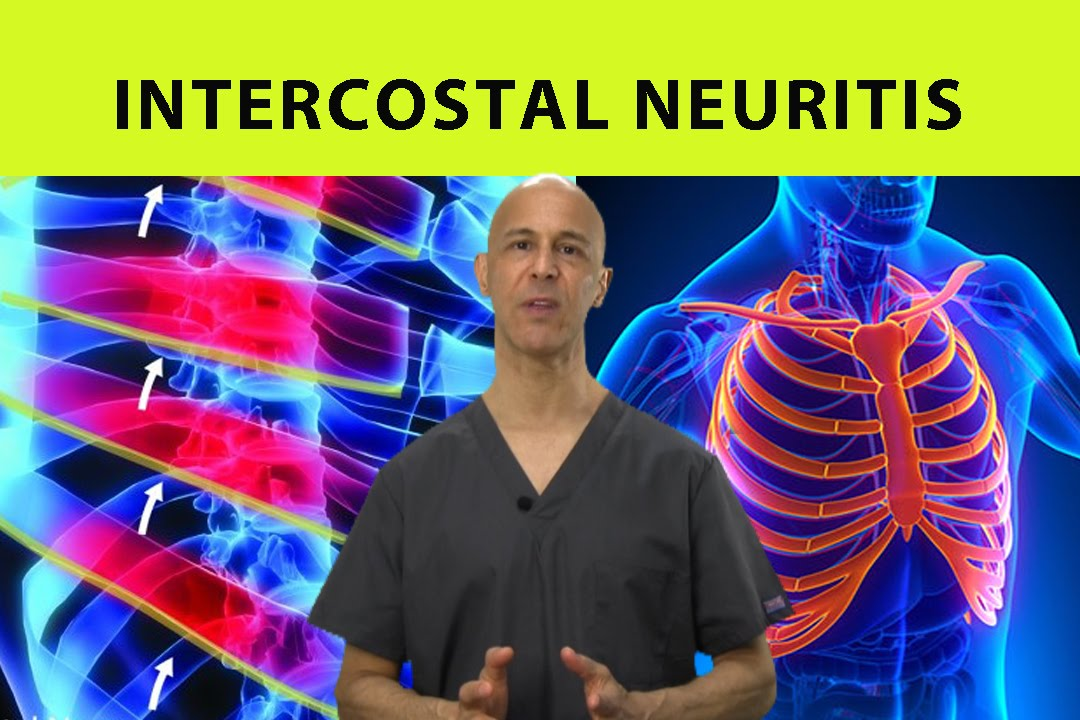Intercostal Neuritis Relief Mid Back Pain Rib Chest Pain Dr
