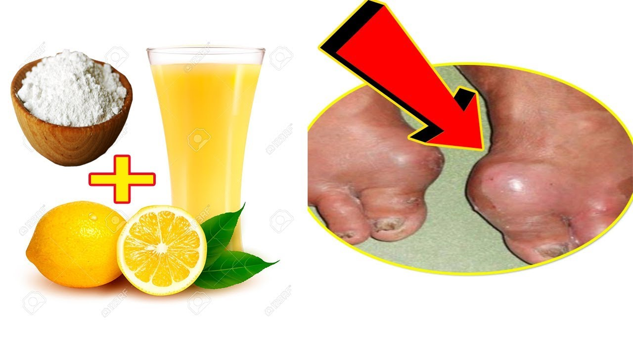 Gout Treatment Naturally with The best Remedies Lemon, Water and Baking  Soda│ Strong Health 9999