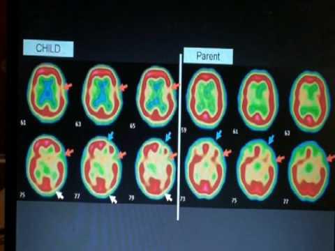 AutIsm Brain SPECT Scan Part III