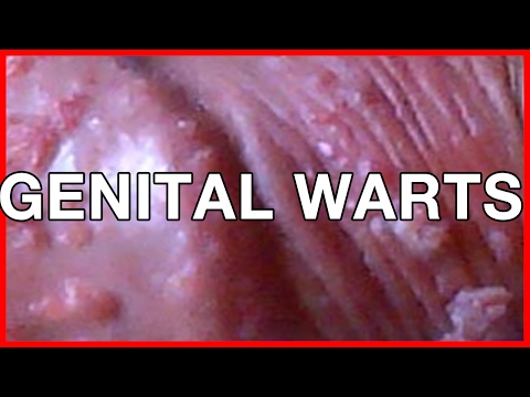 Do I Have Genital Warts? Diagnose and Treatment