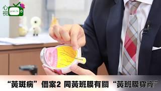 """香港朱東恒醫生 眼科專科醫生 """"黃斑病""""個案2 同黃班膜有關/ """"黃斑裂孔""""手術原理及過程/手術後的康復情況及建議"""