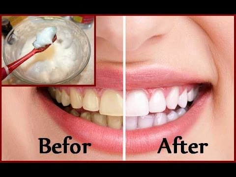 Diy Teeth Whitening At Home In 2 Minutes Youtube