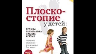 видео Причины, симптомы, лечение плоскостопия у детей