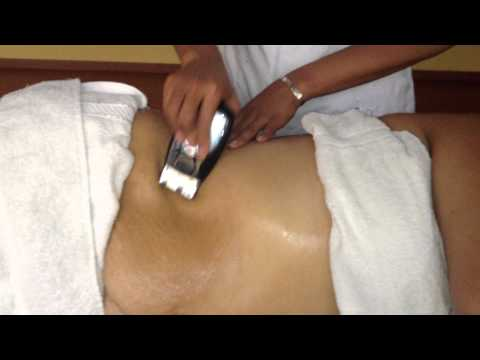 post lipo massage masaje reductor cavitacion miami