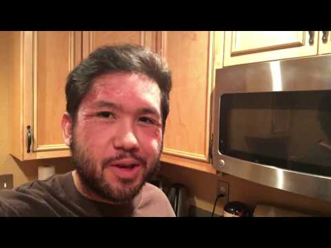 How to Cure Psoriasis Naturally// Chinese Herbal Medicine