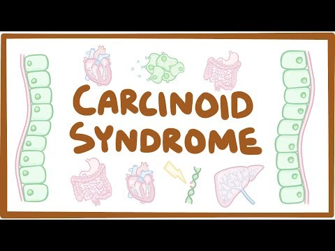 Carcinoid Syndrome - causes, symptoms, diagnosis, treatment, pathology