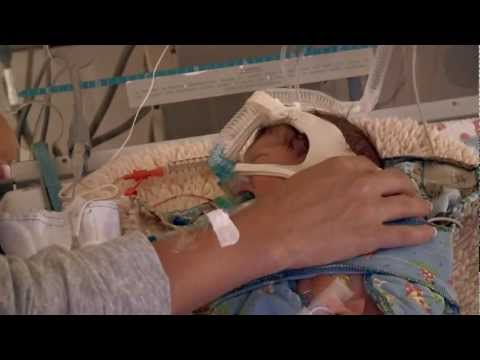 Neonatal Intensive Care for Premature Baby