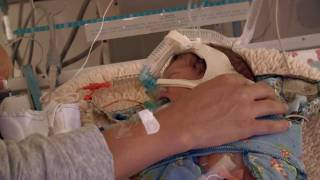 Neonatal Intensive Care For Premature Baby
