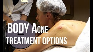 Body Acne Treatment Options : What To Ask For At A Med Spa