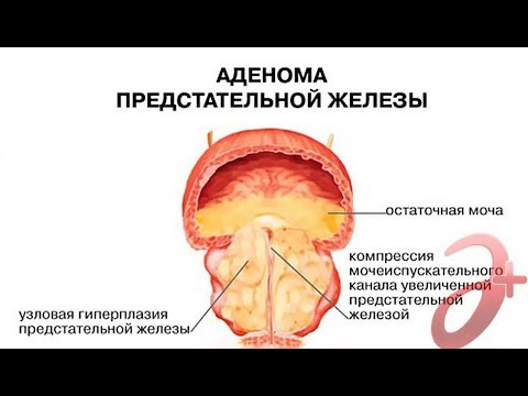 Аденома предстательной железы. Что это такое простыми словами