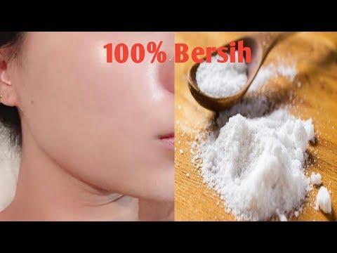 Garam merupakan bahan alami yang dapat membantu menghilangkan masalah jerawat. Air Garam yang diolesi ke wajah juga....