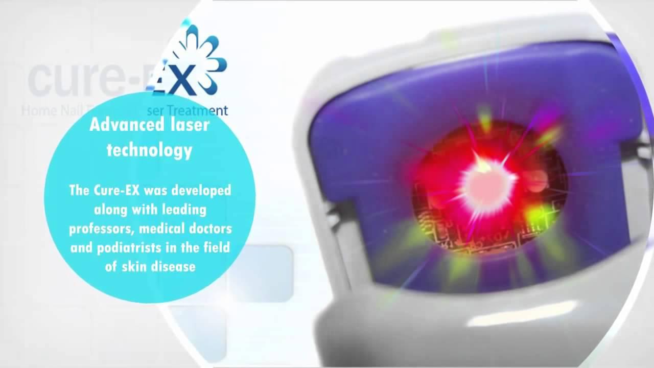 Aparat laser portabil onicomicoza