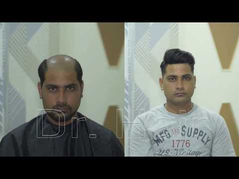 Before & After Hair replacement for men | Chennai | Tamilnadu | www.drhair.in | 9176545018