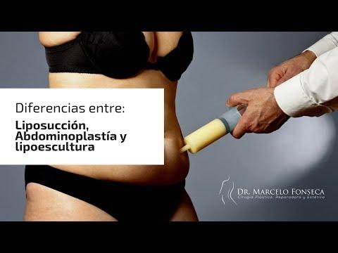 Diferencias: Liposucción, Abdominoplastía y lipoescultura