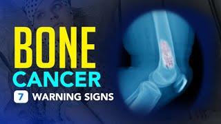 Bone Cancer - 7 Warning Signs