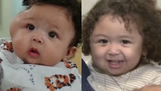1-Year-Old Girl Born With Large Tumor on Face Gets Life-Changing Surgery