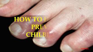 HOW TO HEAL AND PREVENT CHILBLAINS