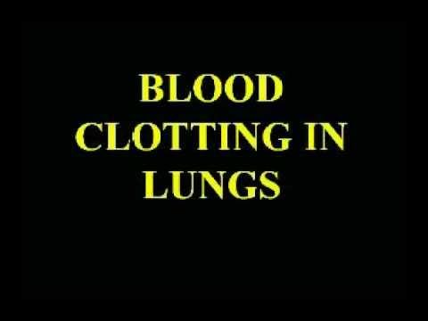 Banner Health Preventable Hazards