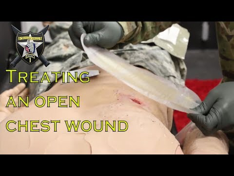 Treating an open chest wound