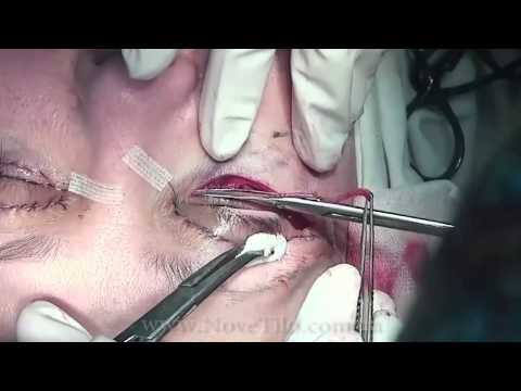Блефаропластика в 3 х минутах | Eyelid plastic surgery  in 3 minutes